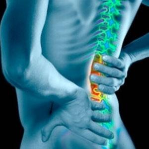Come curare il mal di schiena con i rimedi omeopatici