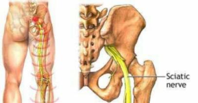 nervepain